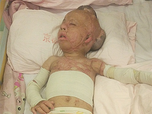 Little angel girl scalded by hot oil urgent need help -hurt-girl-4-1