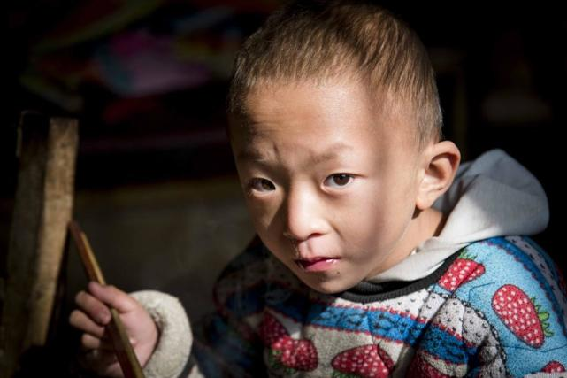 The 6 years old boy with congenital cryptorchidism looking forward to new life -yingao-2